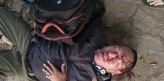Korban Kecelakaan Lalin di jalan Cibubur