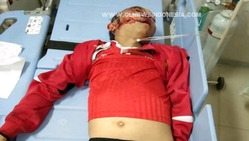 Foto : TABRAK tritoar Jalan, Amran Malau (25), korban laka lantas di jalan Danau Toba -  Simanindo, Selasa (28/5) Sekira Pukul 22.30 wib.